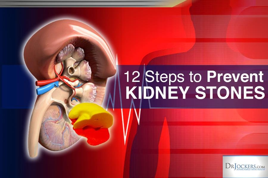 12 Steps To Prevent Kidney Stones