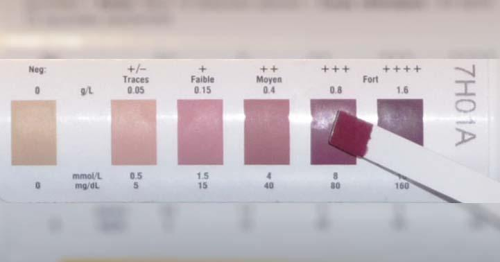 Measuring Ketosis With Ketone Strips: Are They Accurate?