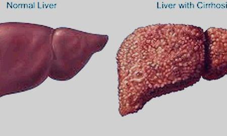 Cirrhosis And Diabetes Life Expectancy