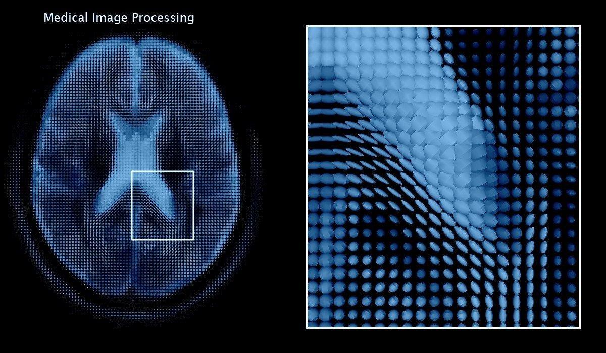 Medical Image Analysis With Deep Learningi