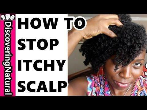 Itchy Scalp | Diabetes Forum The Global Diabetes Community