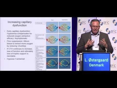 How Does Diabetes Cause Neuropathy Pathophysiology