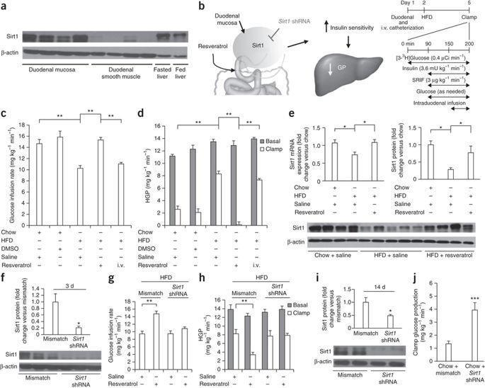 Resveratrol Activates Duodenal Sirt1 To Reverse Insulin Resistance In Rats Through A Neuronal Network