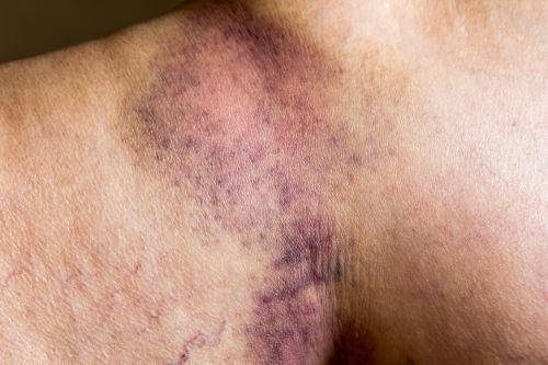 Unexplained Bruising: Causes, Diabetes Connection & The Life-cycle Of A Bruise