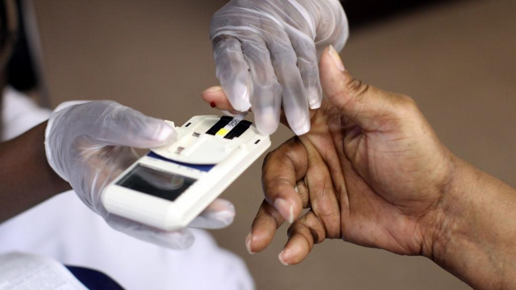 New Guidelines Simplify Cholesterol Tests: No Fasting Needed