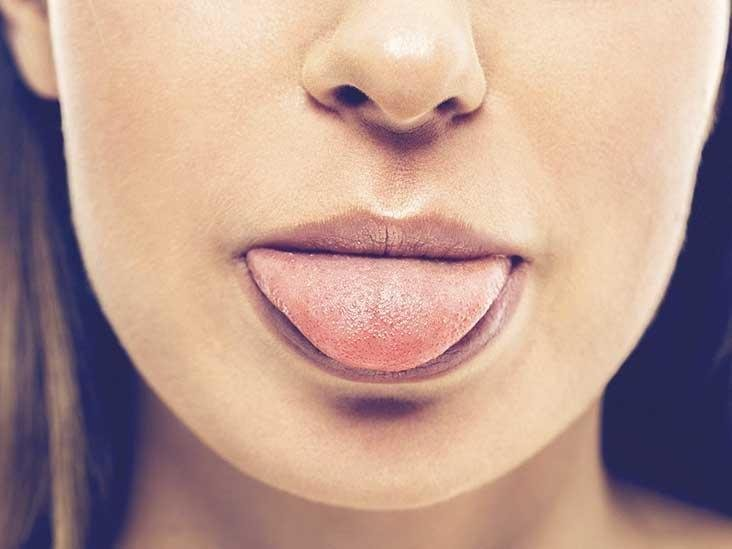 What's Causing A Sweet Taste In My Mouth?