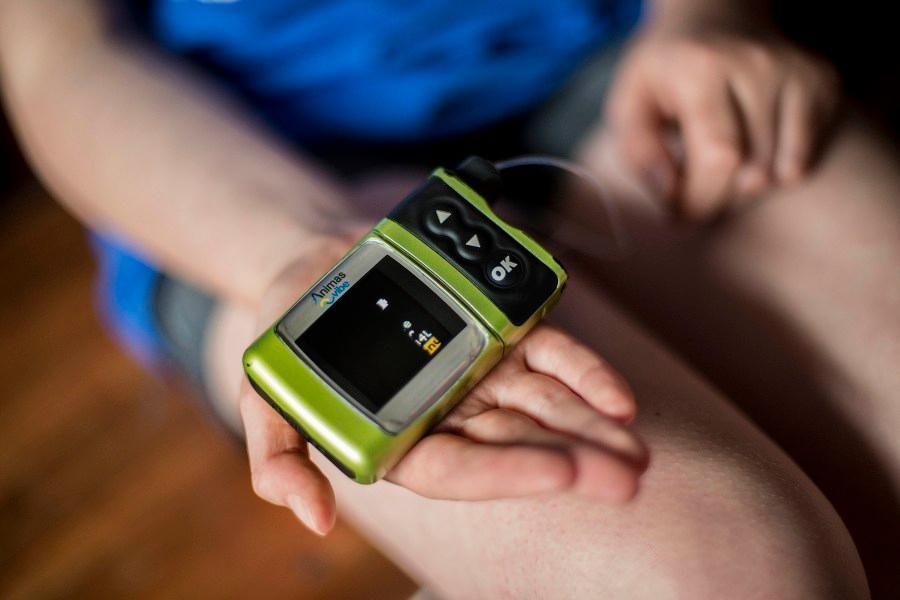 Dexcom Continuous Glucose Monitor Cost