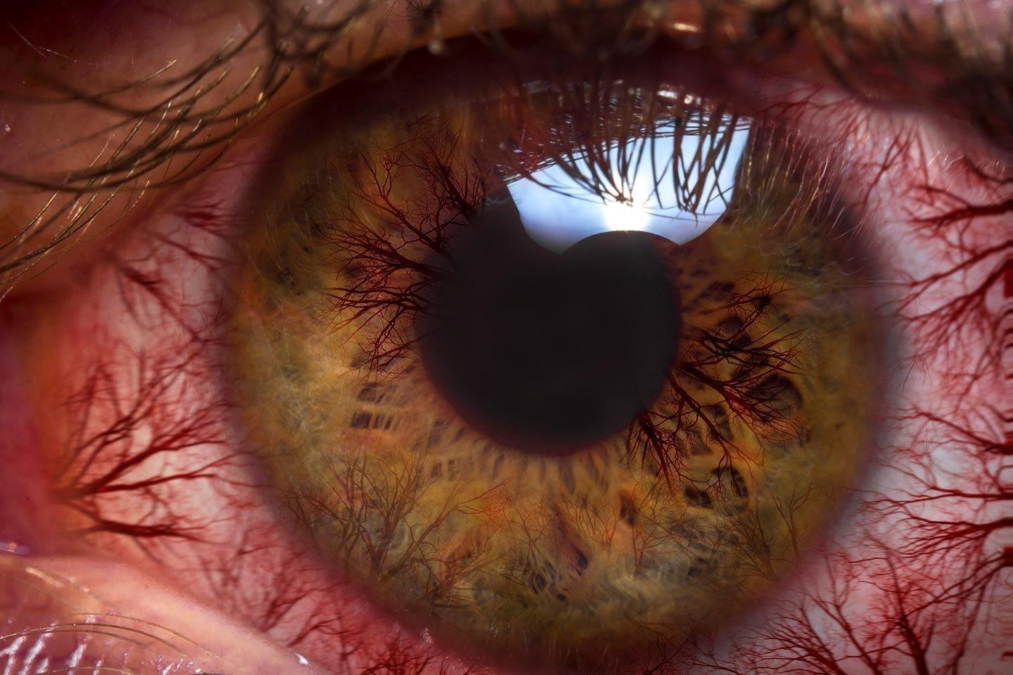 Glaucoma Steals Sight Without Warning