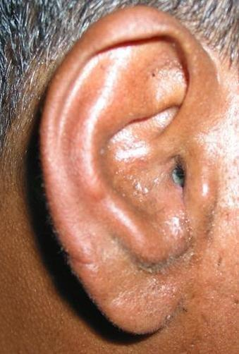 Can Diabetes Cause Ear Problems?