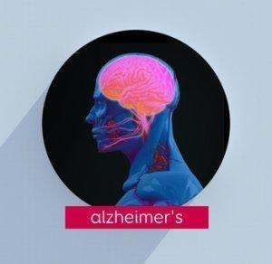 Type 3 Diabetes Alzheimer's