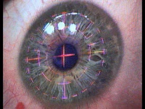 Prp Laser For Diabetic Retinopathy