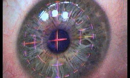laser treatment for diabetic retinopathy