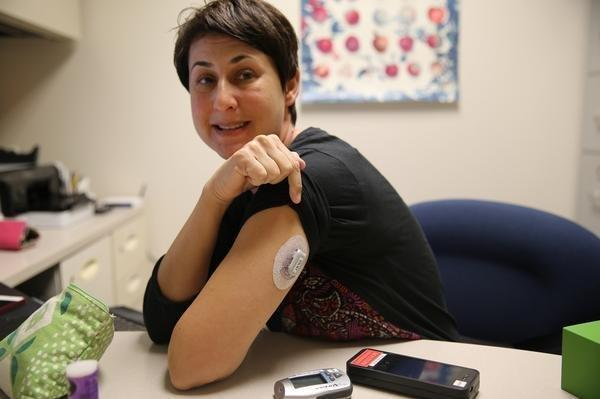 Insulin Pump And Cgm All In One