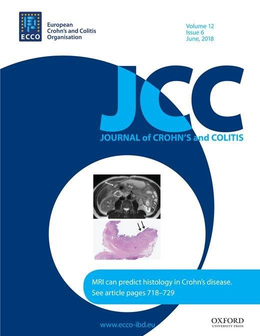 Autoimmune Polyglandular Syndrome Type 2, Alopecia Universalis And Crohn's Disease
