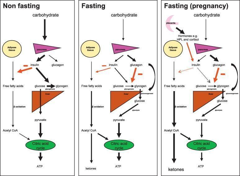 Starvation Ketoacidosis