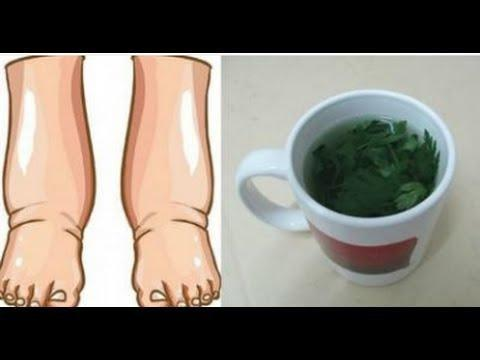 Can Diabetes Cause Swelling In Legs?