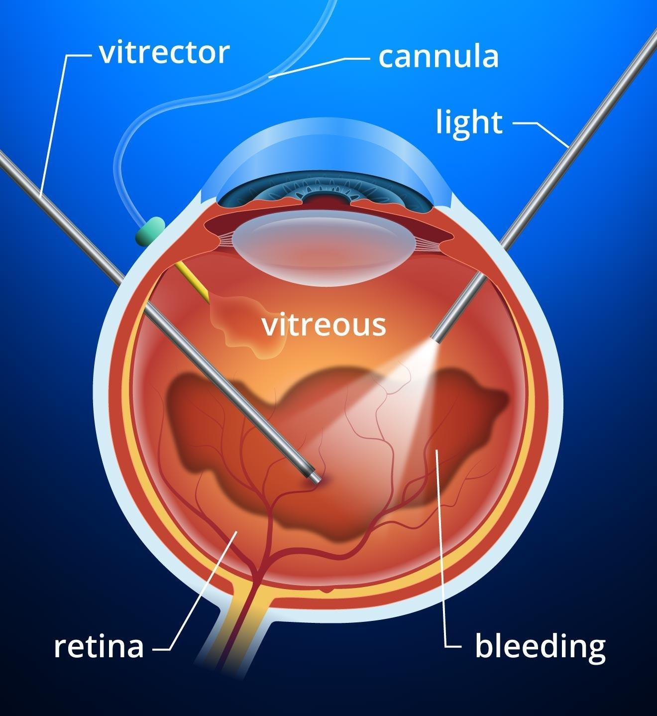 Diabetic Retinopathy Treatment Avastin