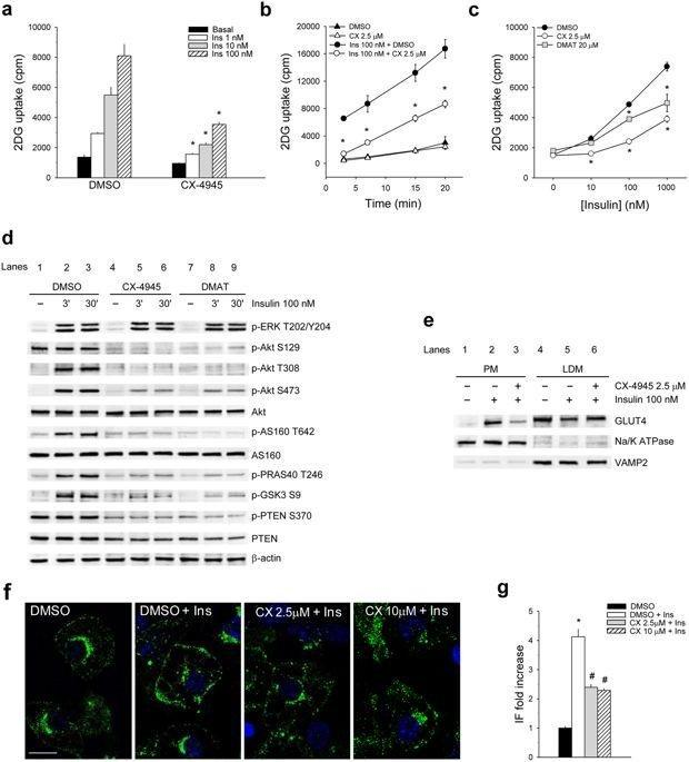 Ck2 Modulates Adipocyte Insulin-signaling And Is Up-regulated In Human Obesity