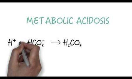 Sodium Bicarbonate Intracellular Acidosis