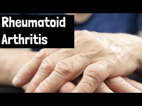 Rheumatoid Arthritis And Diabetes Type 1