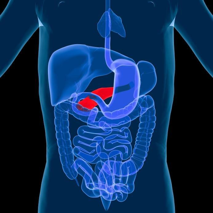 Pancreatic Cancer Sign: Rapid Deterioration of Diabetes Control