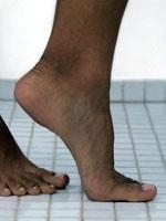 What Happens To Your Feet When You Have Diabetes