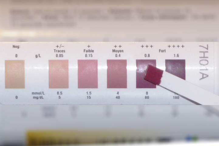 Measuring Ketosis With Ketone Strips Are They Accurate