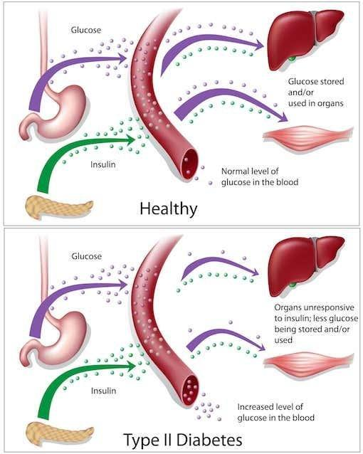 What Are The Causes Of Diabetes Mellitus Type 2?