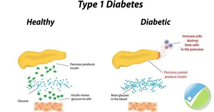Type 1 Diabetes Pregnancy Symptoms