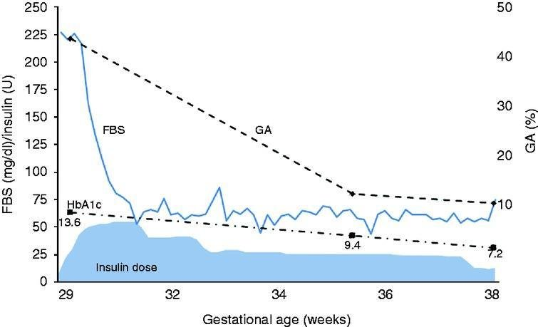 A Case Of A Woman With Late-pregnancy-onset Dka Who Had Normal Glucose Tolerance In The First Trimester