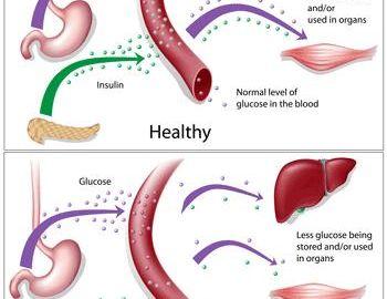 Massage, Diabetes Type 1 , &Hypoglycemia