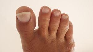 Diabetes and Swollen Feet