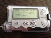 Type 1 Diabetes Low Blood Sugar Early Pregnancy