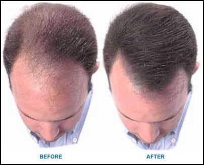 How Do You Reverse Or Cure Hair Loss Naturally?