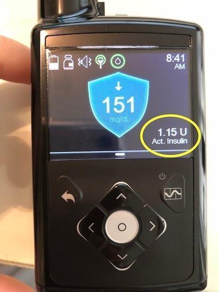 Medtronic Minimed 670g Release Date