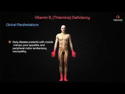 Are Diabetic Complications Due To Vitamin B1 (thiamine) Deficiency?