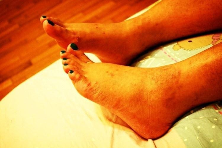 Can Metformin Cause Your Feet To Swell