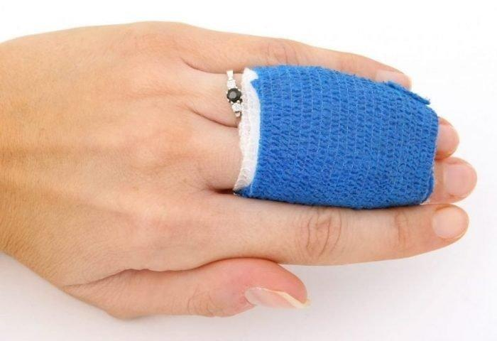 Scientists Discover Metformin As The Optimal Anti-aging Reagent To Improve Wound Healing
