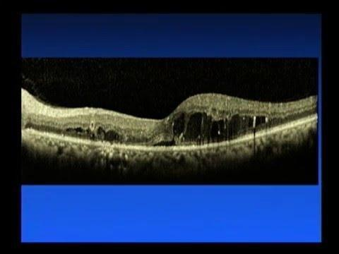 Clinical Trials For Diabetic Macular Edema