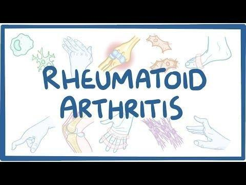 Rheumatoid Arthritis And Diabetes Mellitus Evidence For An Association