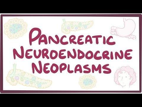 Pancreatic Neuroendocrine Neoplasms (pnens)