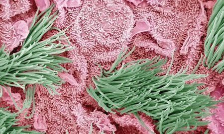 Diabetic Ketoacidosis Abdominal Pain Mechanism