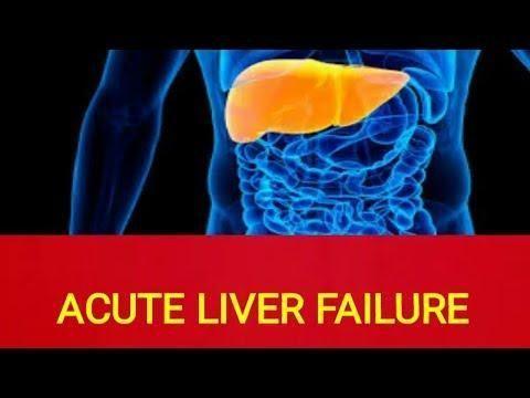 Metabolic Acidosis In Liver Failure
