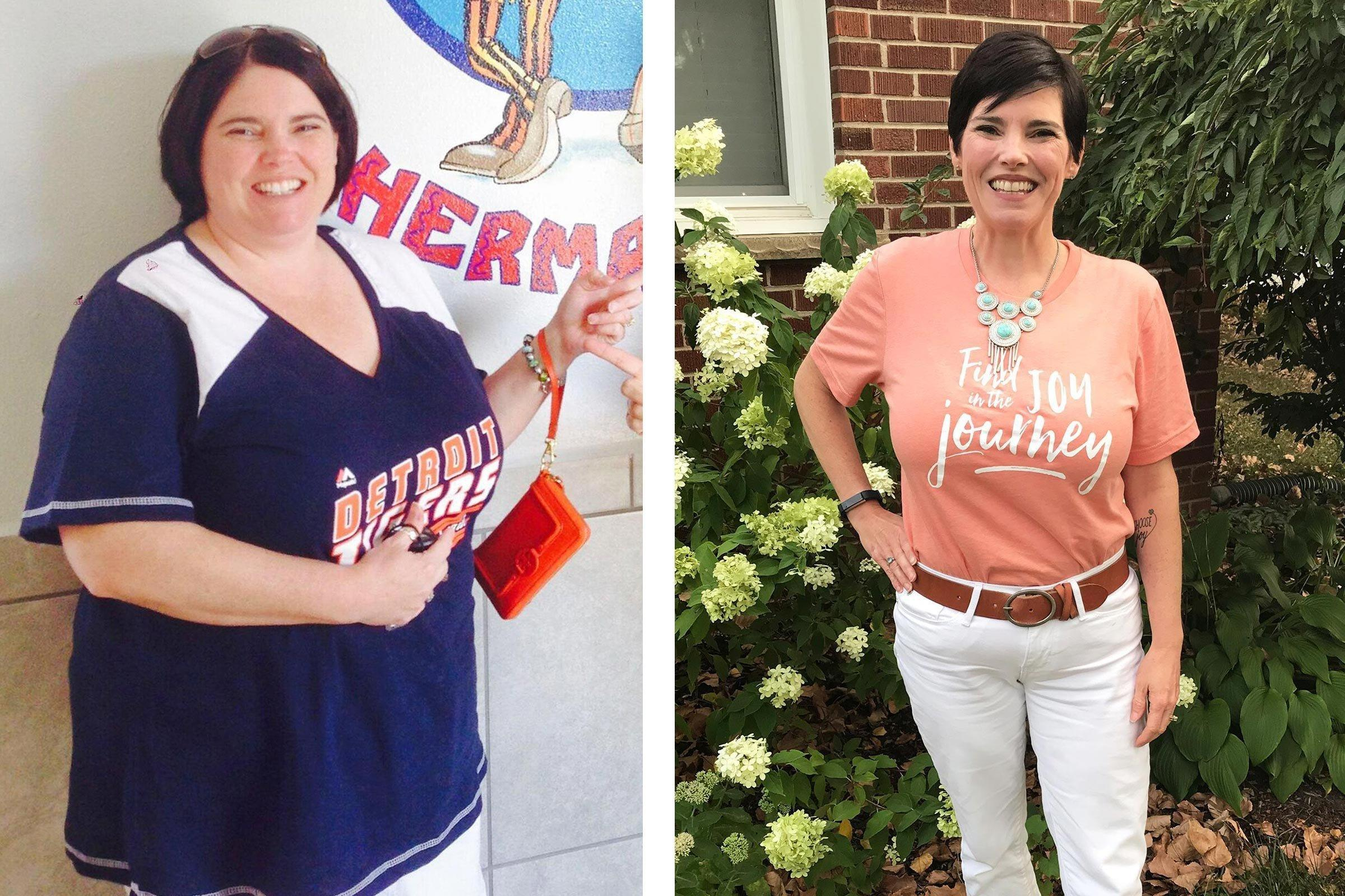 I Lost 100 Pounds On The Keto Dietand Cured My Fatty Liver Disease