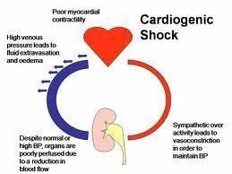 Cardiogenic Shock - Heartupdate.com