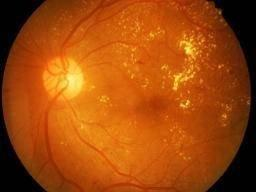 Diabetic Retinopathy: Causes, Symptoms, And Treatments