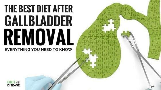The Best Diet After Gallbladder Removal: Everything You Need To Know Explained In Plain English