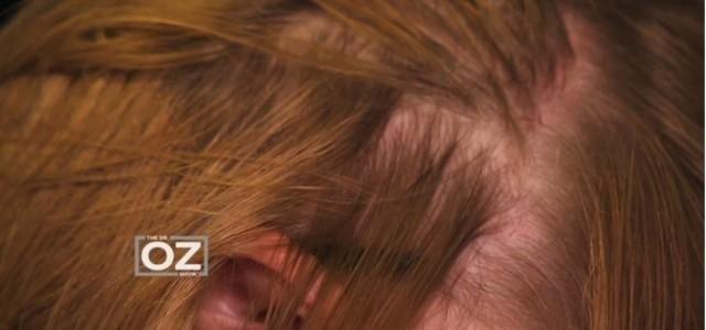 Diabetes And Hair Loss Reversible