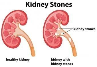 What You Need To Know About Diabetes, Gallstones And Kidney Stones