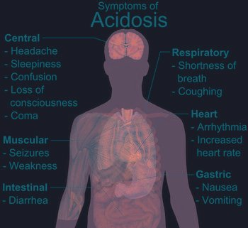 Metabolic Acidosis Causes